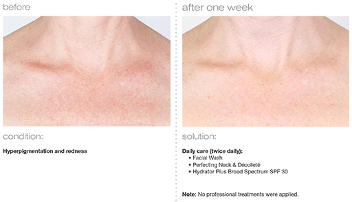 Hyperpigmentation-and-Redness