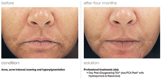 acne-acne-induced-scarring-hyperpigmentation