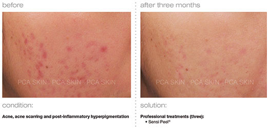 acne-acne-scarring-post-inflammatory-hyperpigmentation