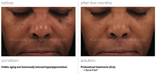 visible-aging-hormonally-induced-hyperpigmentation