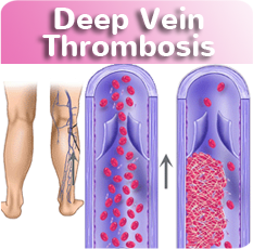 Deep Vein Thrombosis at Vein Clinic CA