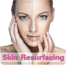 Skin Resurfacing at Vein Clinic CA