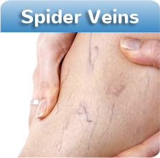 Spider Vein Treatment at Vein Clinic CA