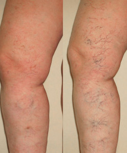 VCC-Spider-Veins-Before-and-After