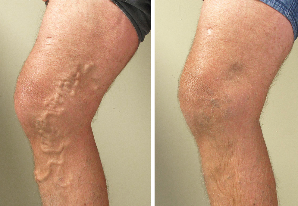varicose veins Learn about varicose veins and spider veins, causes like a sedentary lifestyle, pregnancy, weight gain, pregnancy, and prolonged standing treatments include sclerotherapy, and surgery.