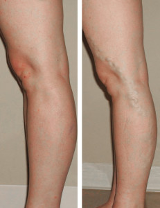 VCC-Varicose-Veins-Before-and-After-2