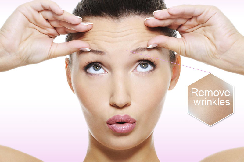 best botox orange county
