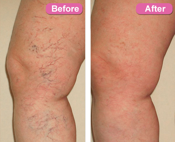 eliminate spider veins