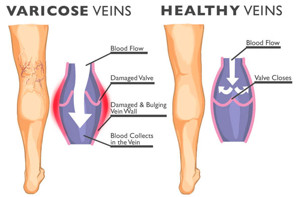 Varicose Vein and Healthy Veins