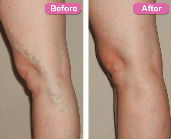 varicose vein treatments orange county