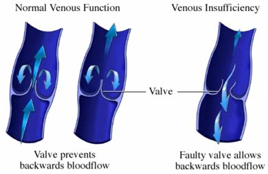 venous insufficiency treatment orange county
